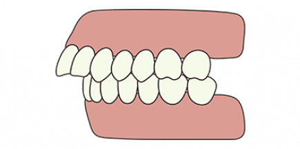 overbite-concept