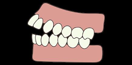 open-bite-concet